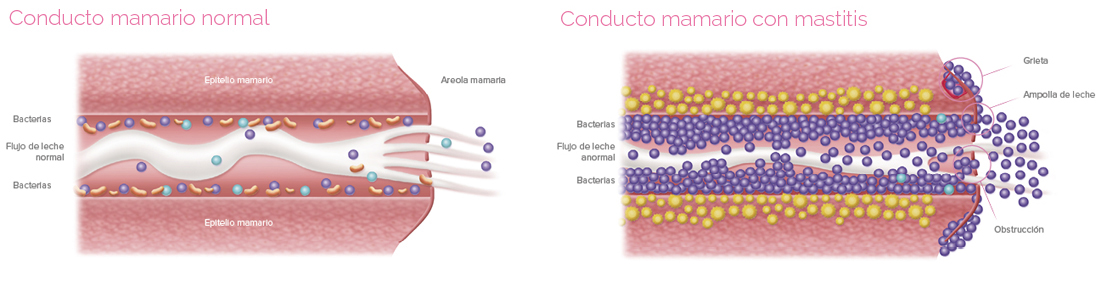 Conducto mamario normal y con mastitis